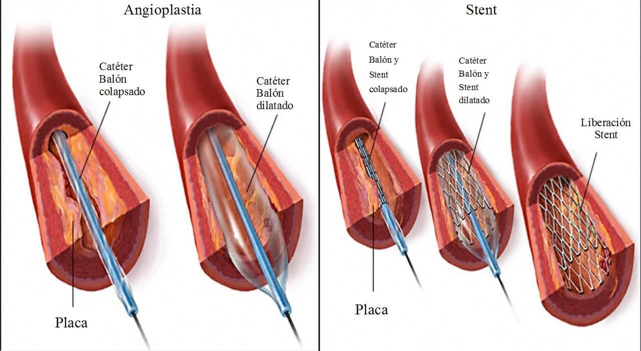 Angioplastia y colocación de stent en el corazón